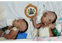 Conjoined Twins sucessfully Separated at University of Ilorin Teaching Hospital Nigeria (Photos)
